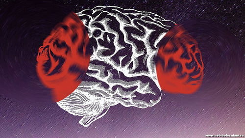 What is Alzheimer's disease and what does it have to do with dementia?